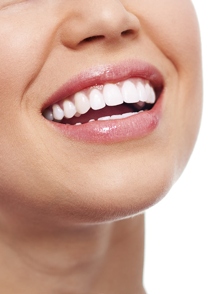Whitening Ad - Woman Smiling White Teeth