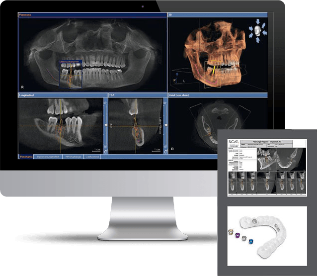 How Does 3D Imaging Work In Dentistry?